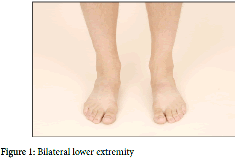 orthopedic-muscular-system-bilateral-lower-extremity