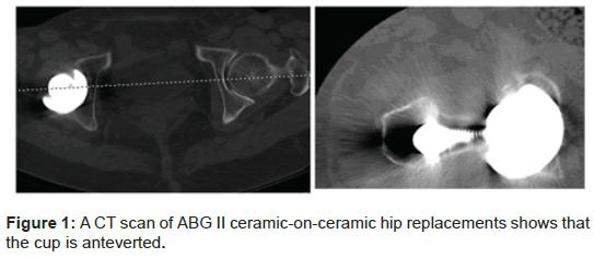 orthopedic-muscular-system-ceramic-on-ceramic-hip-anteverted