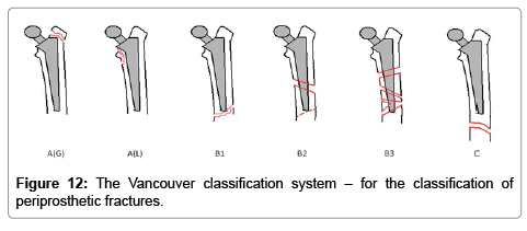 orthopedic-muscular-system-current-research-classification