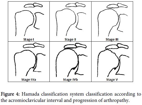 orthopedic-muscular-system-hamada-acromioclavicular-arthropathy