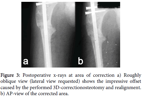 orthopedic-muscular-system-oblique-impressive-correctionosteotomy