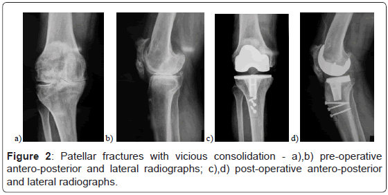 orthopedic-muscular-system-patellar-fractures-vicious