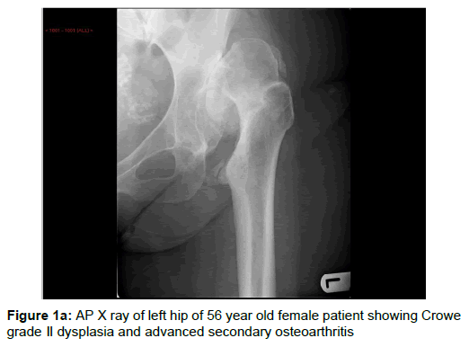Dysplasia hip in adult