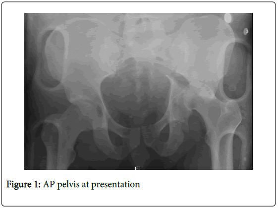 orthopedic-muscular-system-pelvis-presentation