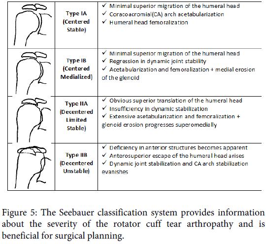 orthopedic-muscular-system-seebauer-rotator-arthropathy