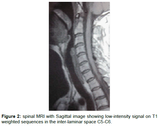orthopedic-muscular-system-spinal-sagittal-intensity