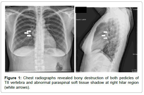 orthopedic-oncology-Chest-radiographs-revealed-bony
