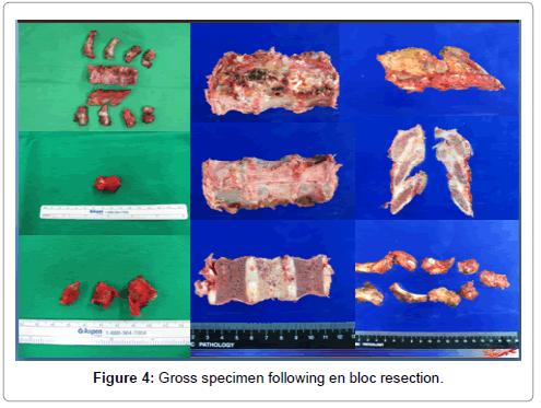 orthopedic-oncology-Gross-specimen-en-bloc-resection