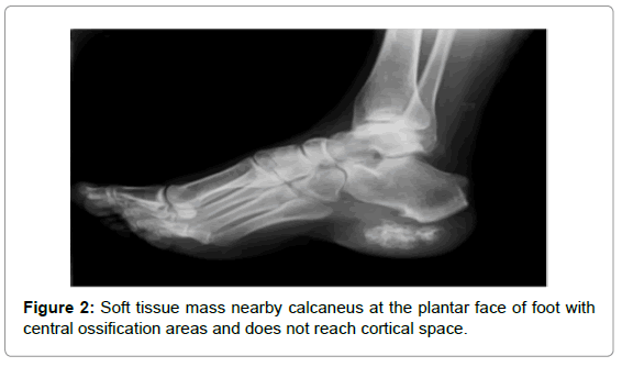 orthopedic-oncology-Soft-tissue-mass-nearby-calcaneus
