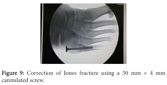 osteoarthritis-Correction-Jones-fracture
