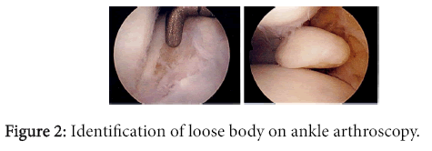 osteoarthritis-Identification-loose-body-ankle-arthroscopy