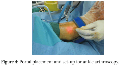 osteoarthritis-Portal-placement-set-up-ankle-arthroscopy