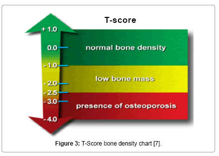 osteoporosis and less negative t score The more negative the number is, the less bone density you have compared with an organization's definitions of osteoporosis based on bone density t-scores.