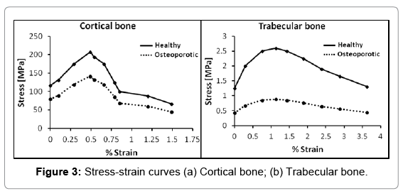 osteoporosis-physical-activity-Stress-strain-curves