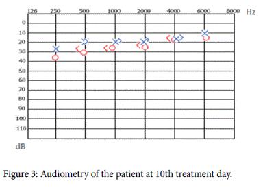 otolaryngology-10th-treatment