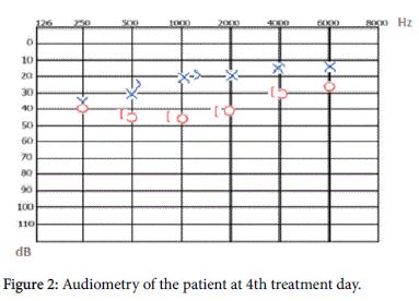 otolaryngology-4th-treatment