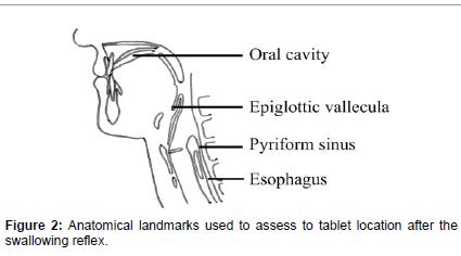 otolaryngology-Anatomical-landmarks