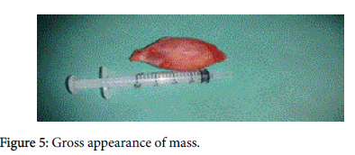 otolaryngology-Gross-appearance