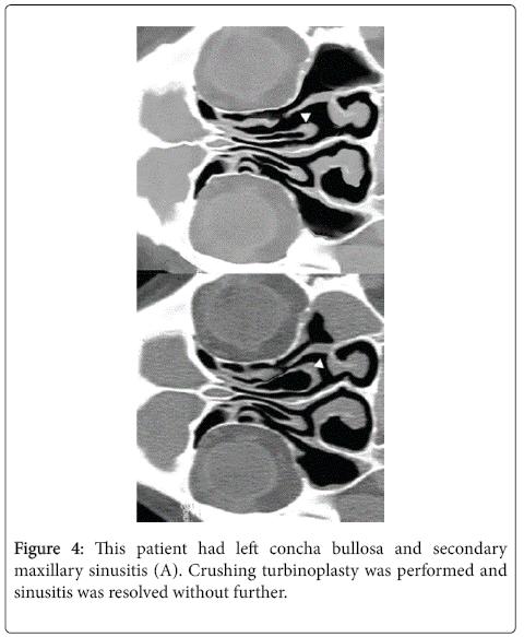 otolaryngology-concha-bullosa
