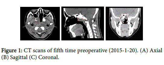 otolaryngology-fifth-time