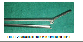 otolaryngology-fractured-prong