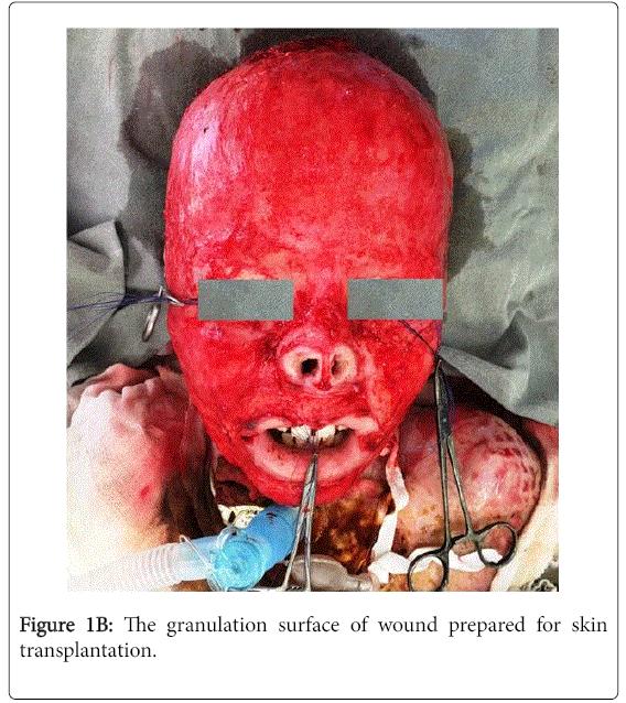 otolaryngology-open-access-wound-prepared