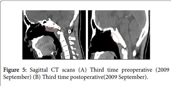 otolaryngology-postoperative-September