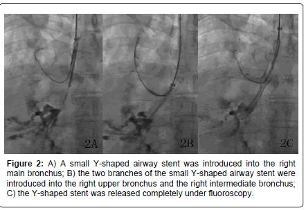 otolaryngology-released-completely