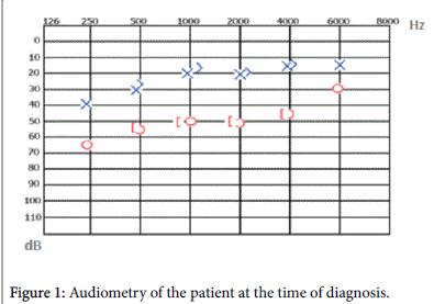 otolaryngology-time-of-diagnosi