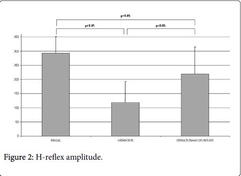 pain-relief-reflex-amplitude
