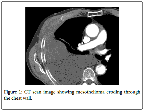 palliative-care-medicine-CT-scan