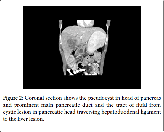 pancreatic-disorders-Coronal-section