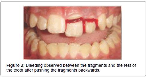 pediatric-dental-care-Bleeding-observed