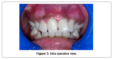 pediatric-dental-care-Intra-operative-view