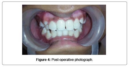 pediatric-dental-care-Post-operative-photograph