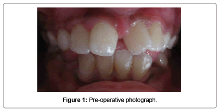 pediatric-dental-care-Pre-operative-photograph