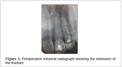 pediatric-dental-care-Preoperative-intraoral