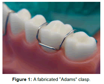 pediatric-dental-care-a-fabricated-adams