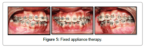 pediatric-dental-care-appliance