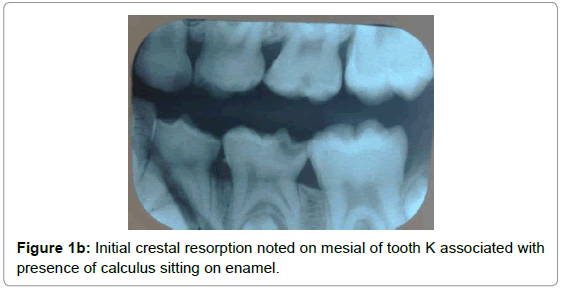pediatric-dental-care-crestal-resorption-mesial