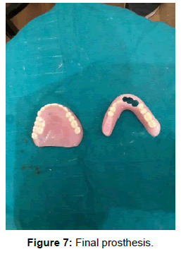 pediatric-dental-care-final-prosthesis