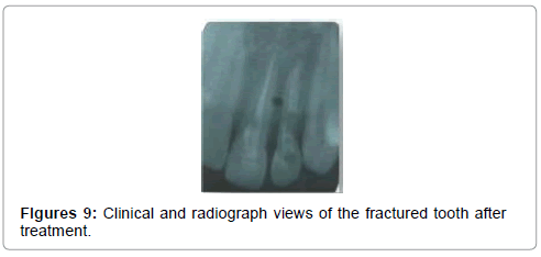 pediatric-dental-care-fractured-tooth