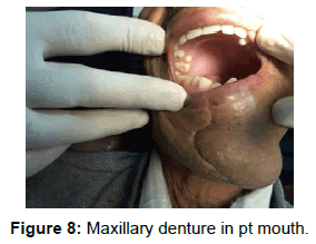 pediatric-dental-care-maxillary-denture-mouth