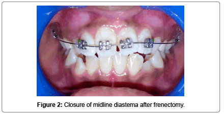 pediatric-dental-care-midline-diastema-frenectomy