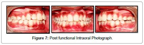 pediatric-dental-care-photograph