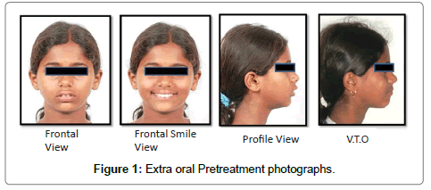 pediatric-dental-care-photographs