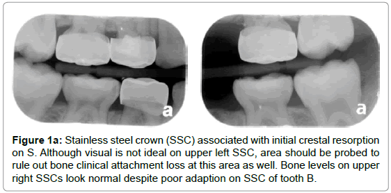 pediatric-dental-care-steel-crown-crestal