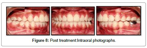 pediatric-dental-care-treatment