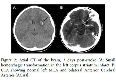 pediatric-neurology-hemorrhagic-transformation
