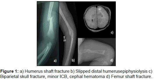 pediatrics-therapeutics-humerus-fracture-distal